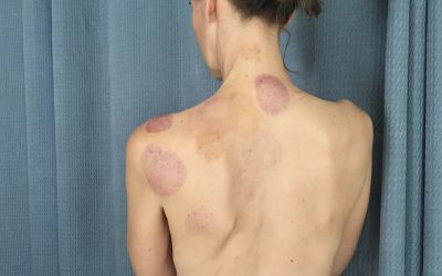 All About Cupping Marks